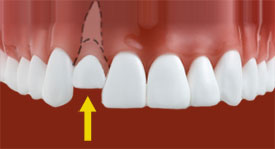 dislodged teeth - Johnson Family Dentistry
