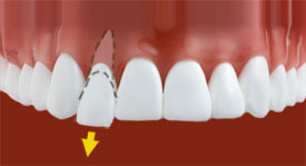 dislodged tooth - Johnson Family Dentistry